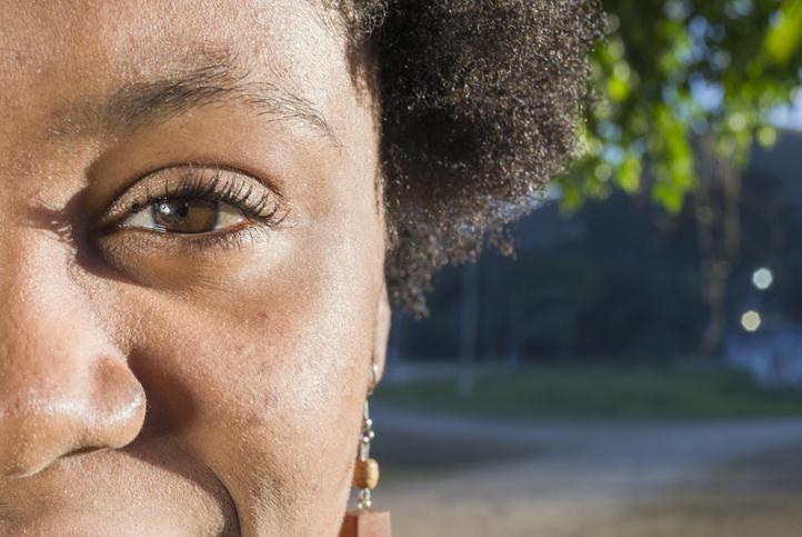 O que é a degeneração macular relativa à idade e como se prevenir